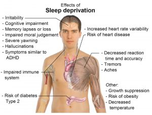 effect of sleep deprivation