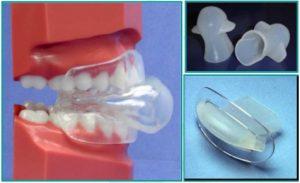 Tongue restraining Device example