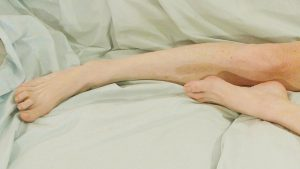 bare feet with restless leg syndrome