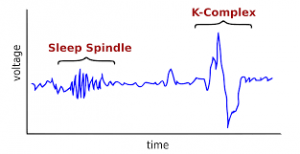 sleep-spindle-and-k-complex