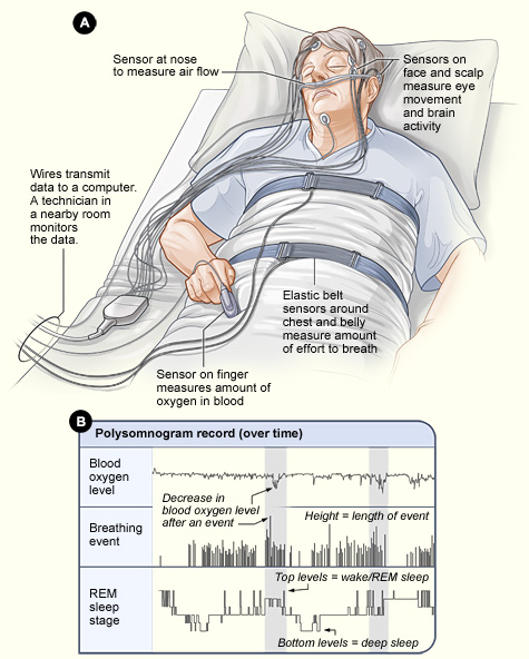 sleep study wiring