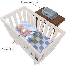 infant sleep apnea monitor